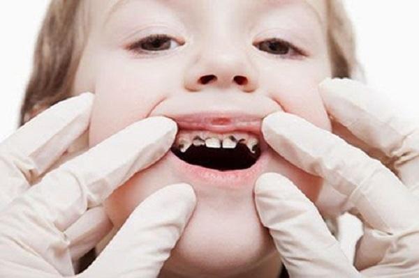 Những chỉ dẫn của nha sĩ về việc lấy tủy răng trẻ em – nha khoa Thùy Anh