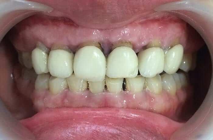 Nguyên nhân dẫn đến bọc răng sứ bị lỗi hỏng?