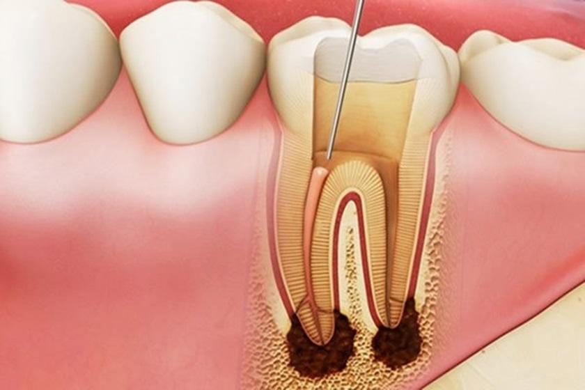 Hỏi đáp: Răng đã lấy tủy thì tồn tại được bao lâu? Nha khoa Thùy Anh