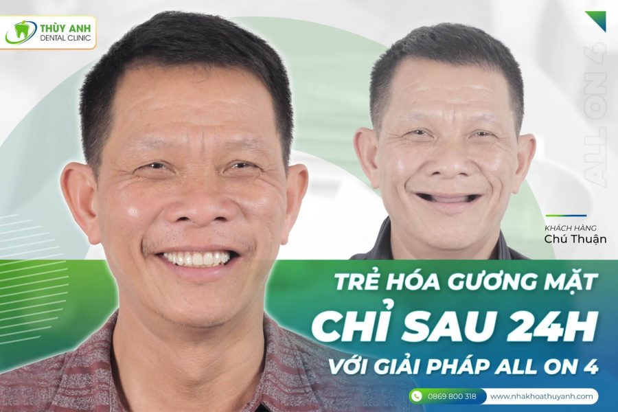 hinh anh cong nghe
