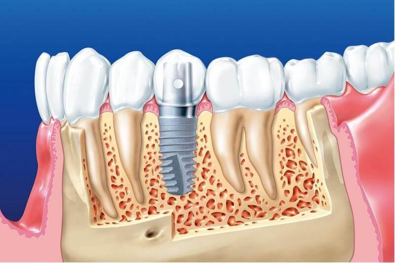 Trồng implant giá rẻ có tốt không? Những rủi ro khi trồng răng implant giá rẻ?
