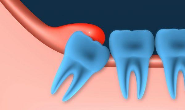 Phụ nữ bị viêm lợi trùm răng khôn khi mang thai phải làm sao?
