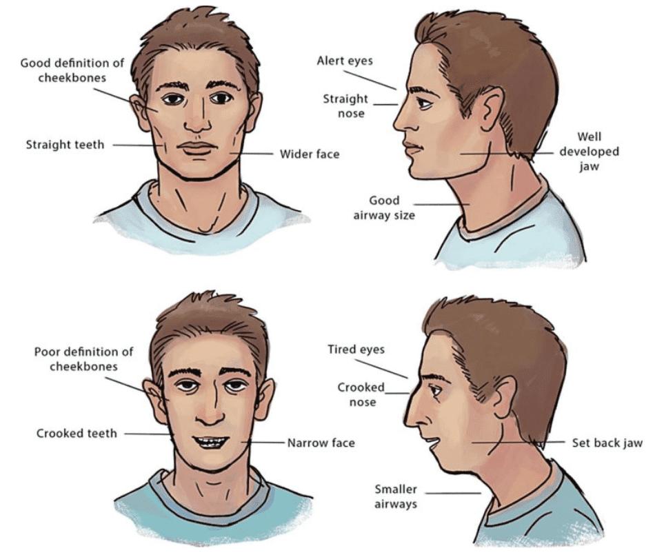 Những điều cần biết về xương hàm trên kém triển ra trước?