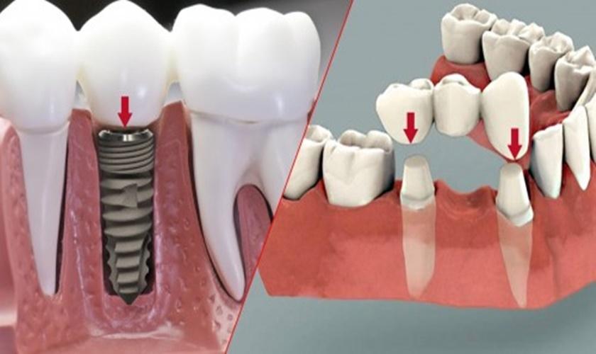 Quy trình thay thế cầu răng hỏng bằng chân răng nhân tạo implant trải qua những giai đoạn nào?