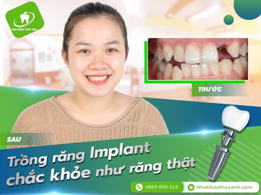 Răng cửa bị sâu hỏng hoặc chấn thương trồng implant hết bao nhiêu tiền?