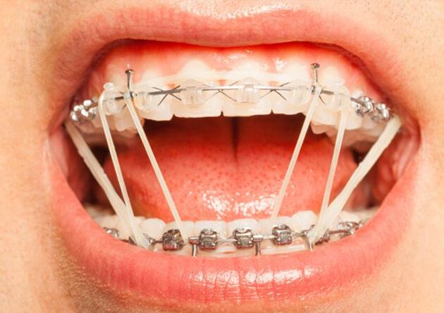 Tổng hợp các loại khí cụ khi niềng răng