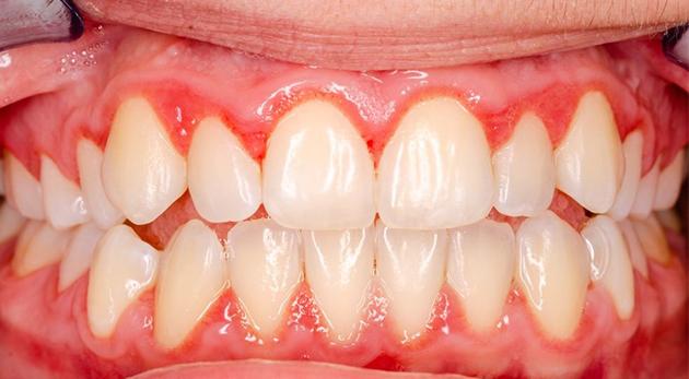 4 sai lầm phổ biến khi sử dụng răng dẫn tới tình trạng viêm nhiễm