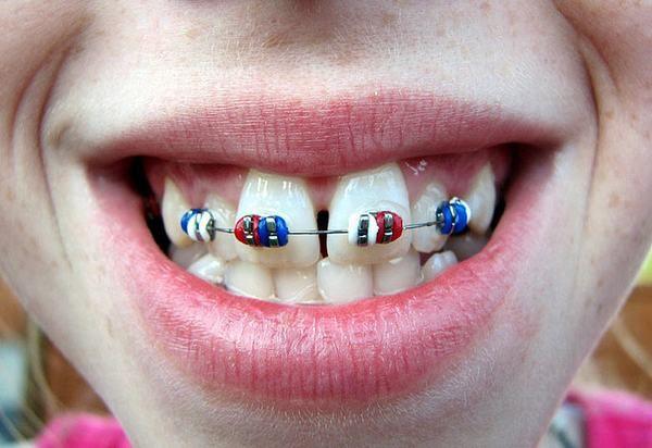 Niềng 2 răng cửa mất bao lâu? Có nên niềng 2 răng cửa không?