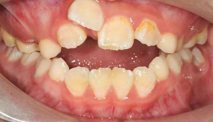 Niềng hai răng cửa có hiệu quả không? Chi phí là bao nhiêu? Nha khoa Thùy Anh