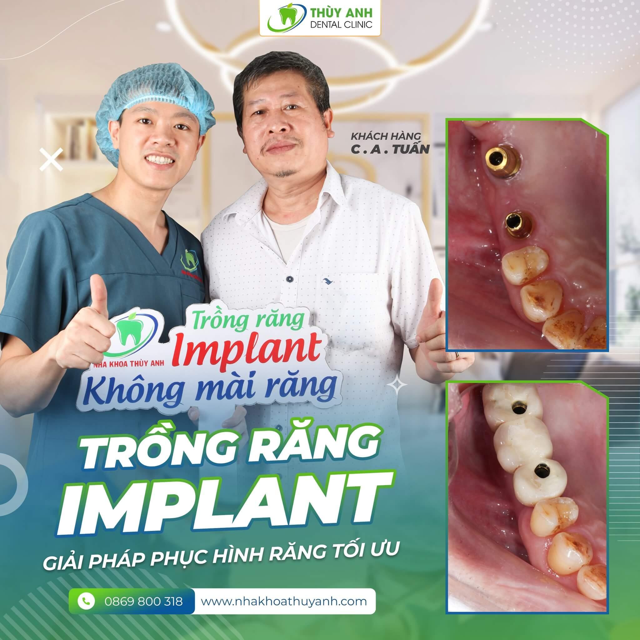 Trồng răng implant cho người già có ưu điểm gì? Chi phí là bao nhiêu?