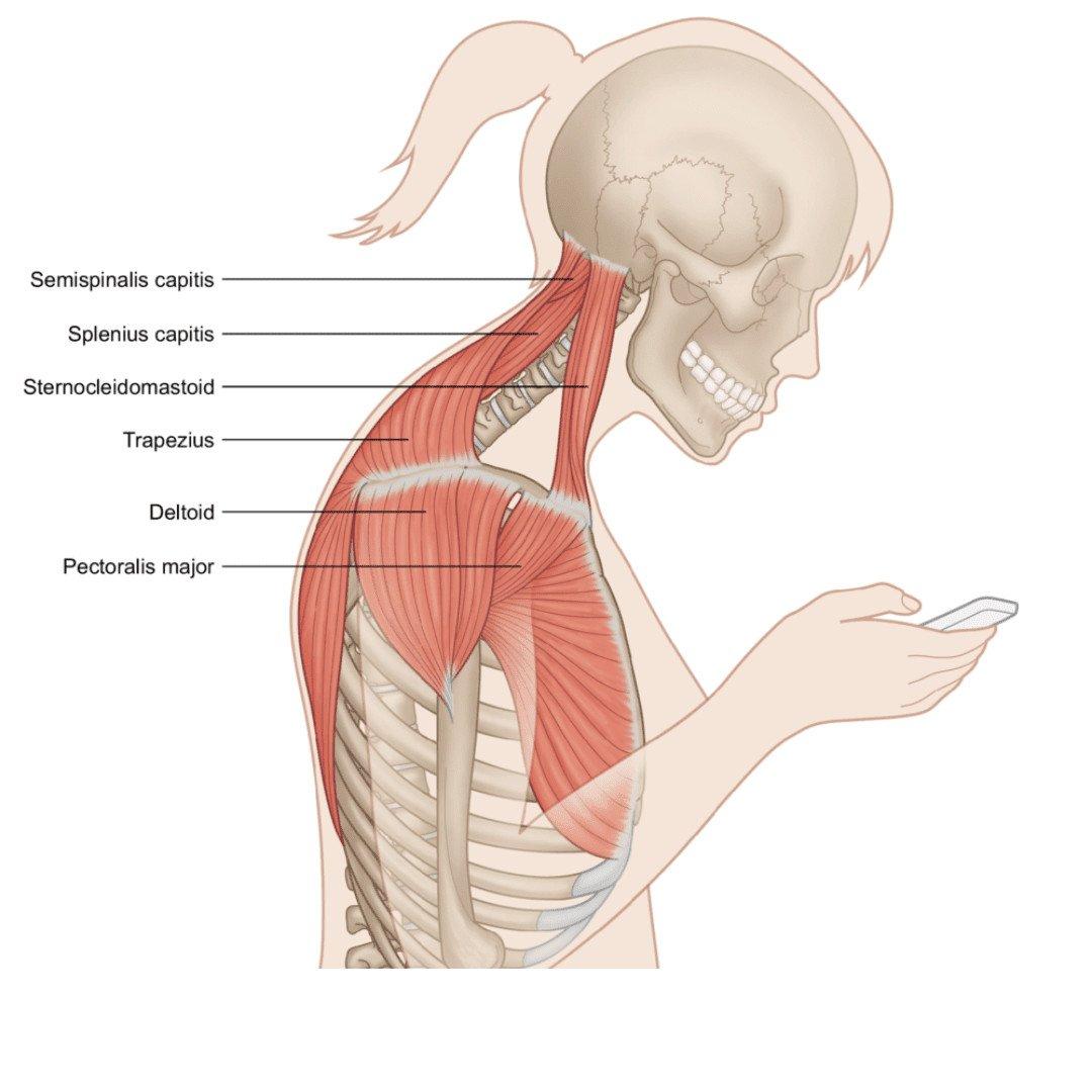 Hướng dẫn tập Chin Tucking – điều chỉnh rối loạn tư thế cổ gáy