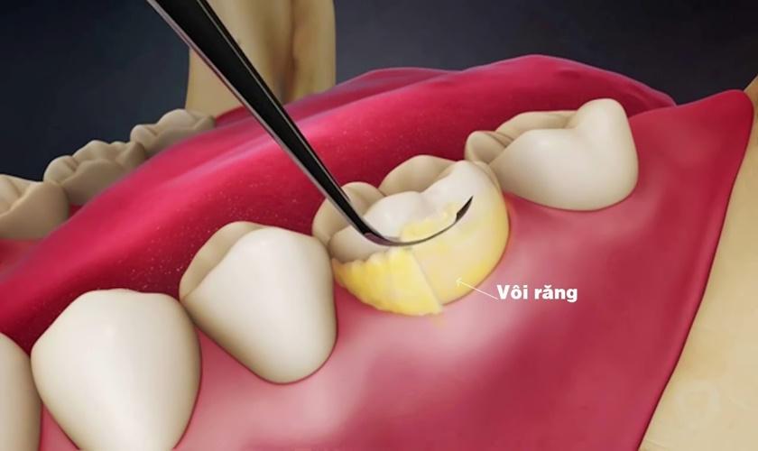 Cách để ngăn ngừa sự hình thành cao răng cho nụ cười trắng sáng – nha khoa Thùy Anh