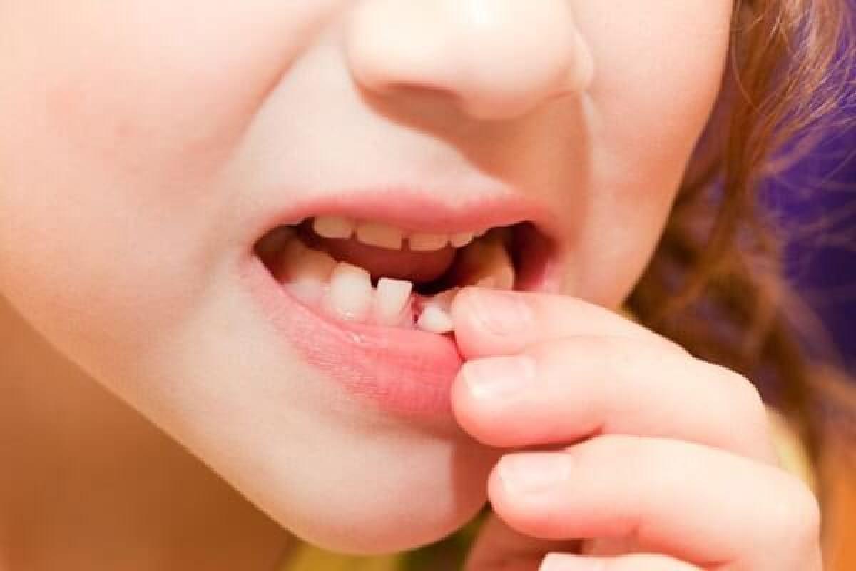 Trẻ bị ngã chấn thương răng sữa cần phải làm gì? Nha khoa Thùy Anh