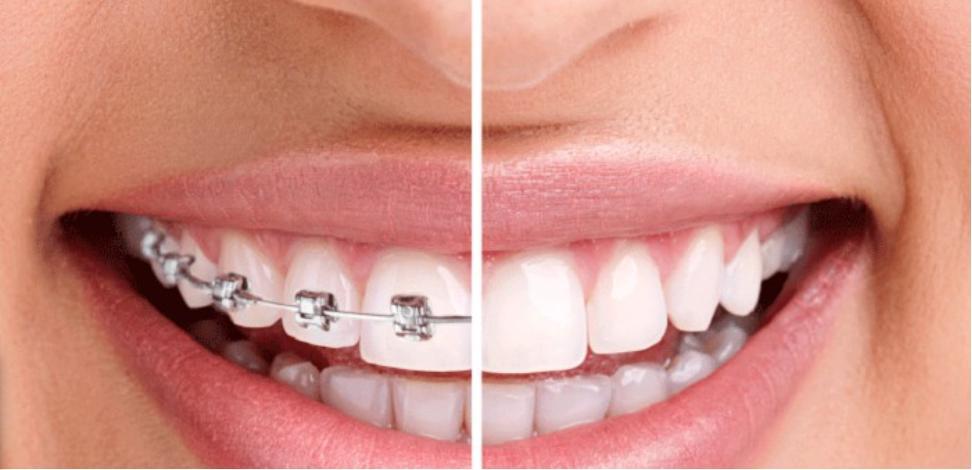 Trồng răng giả xong có niềng răng được nữa hay không? Nha khoa Thùy Anh