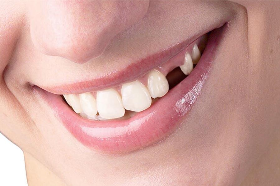Mất răng có niềng răng được không? Trồng hay kéo răng thay răng mất?