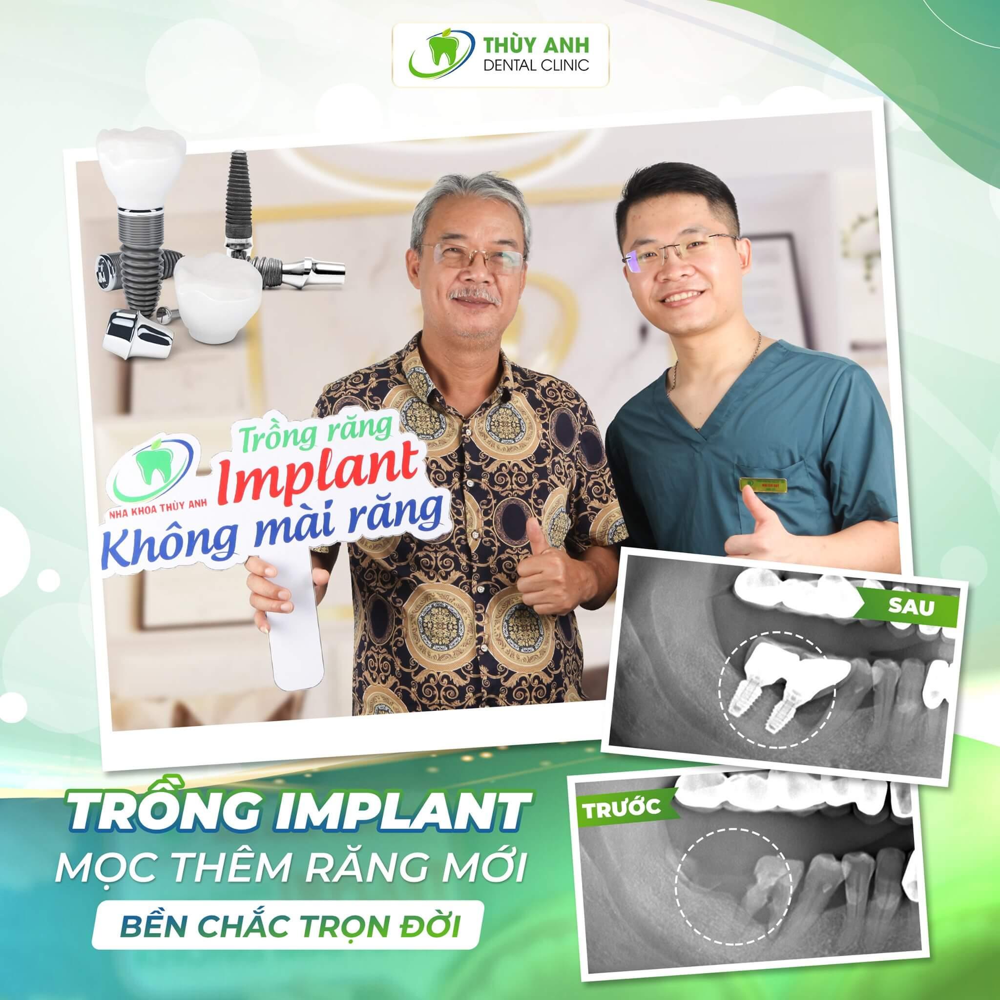 Xương hàm thế nào mới đạt tiêu chuẩn cấy ghép Implant?