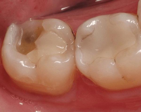 Hỏi đáp: Răng vỡ một bên thì khắc phục như thế nào? Nha khoa Thùy Anh