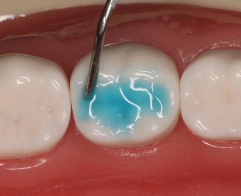 Trám bít hố rãnh: Giải pháp tuyệt vời phòng ngừa sâu răng ở trẻ em