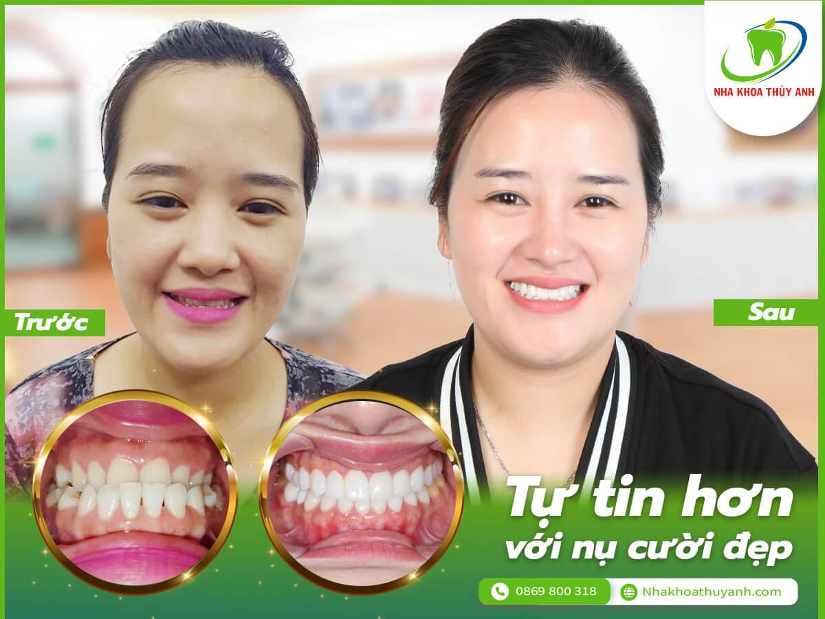 Trên 30 tuổi niềng răng móm có còn hiệu quả không? Câu chuyện niềng răng của chị Thu Hiền và sự thay đổi về nụ cười sau khi niềng răng móm