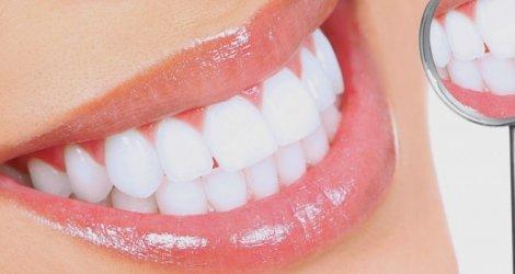 Độ bền và thẩm mỹ của răng sứ ảnh hưởng bởi những yếu tố nào?