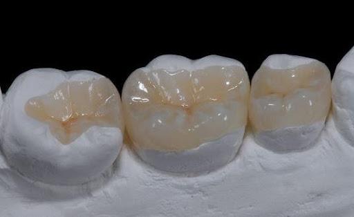Chỉ định bọc sứ cho răng hàm: Những vấn đề cần nắm rõ – nha khoa Thùy Anh