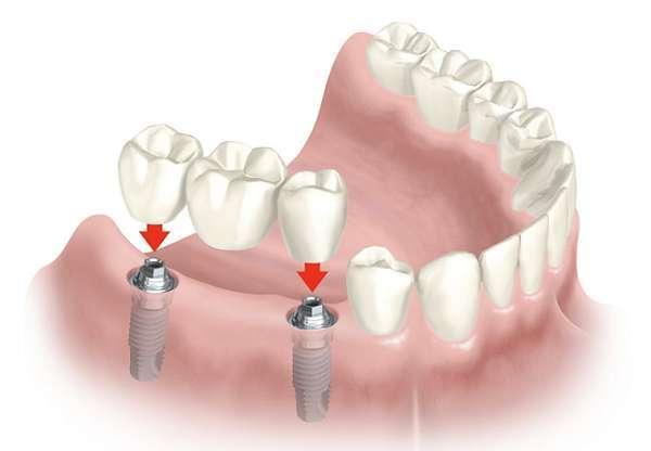 Cầu răng giả trên chân răng nhân tạo implant có chắc chắn không?