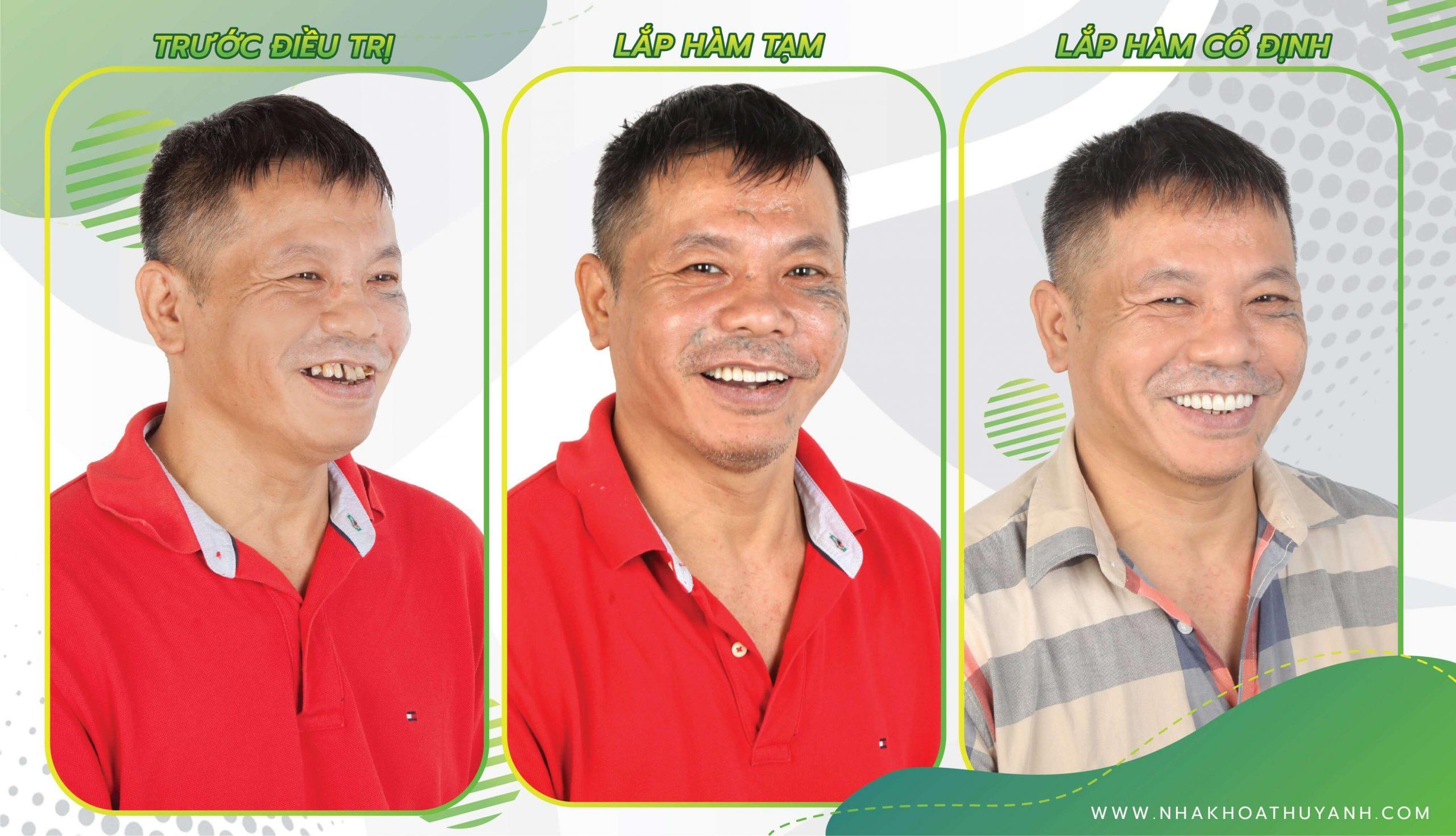 Nâng cao chất lượng cuộc sống ở độ tuổi trung niên với hàm giả cố định All On 4 | Dr. Lê Sơn Tùng