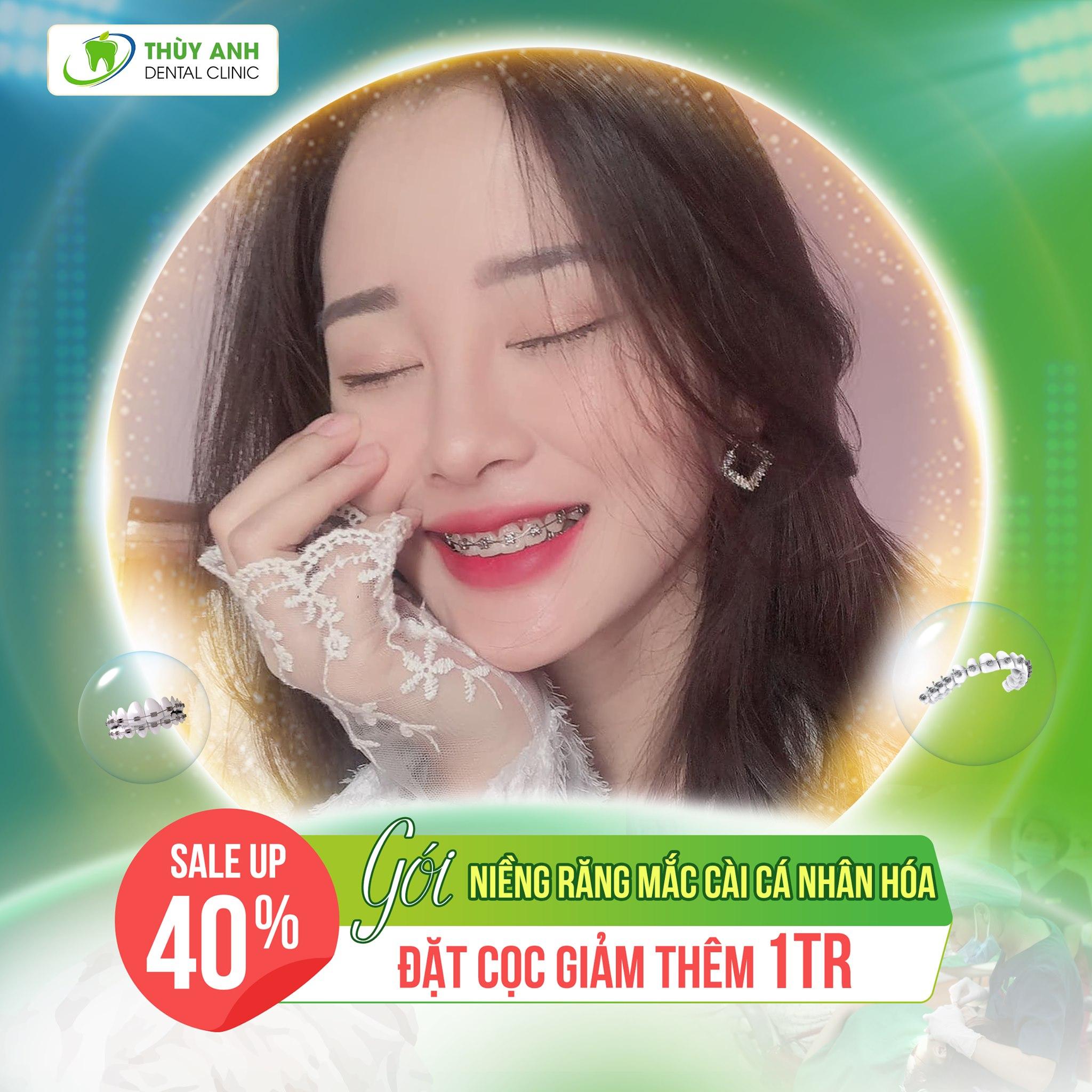 Sale up 40% gói niềng răng cá nhân hóa – Nha khoa Thùy Anh