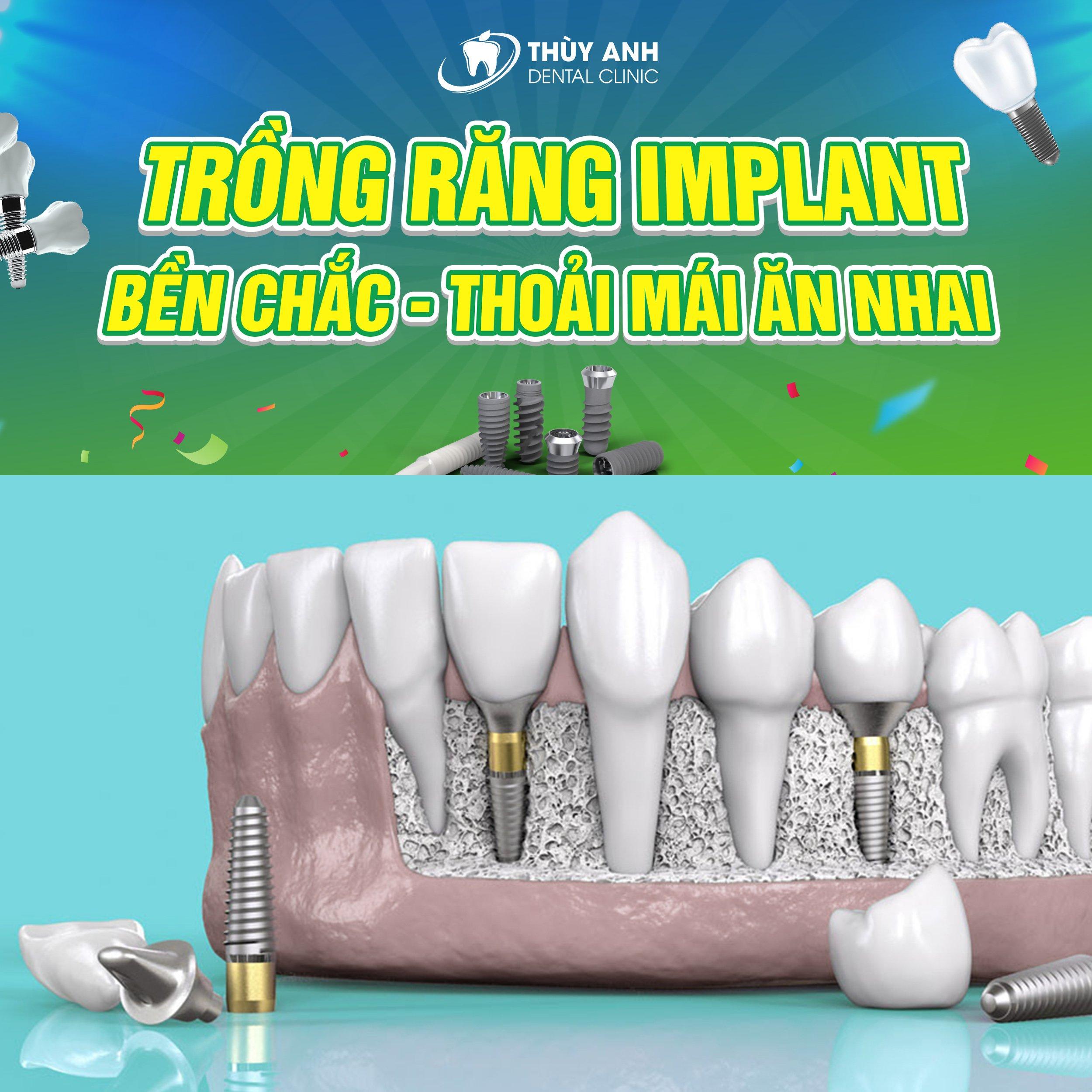 Trồng răng implant bền chắc ăn nhai thoải mái trọn gói 6.9Tr