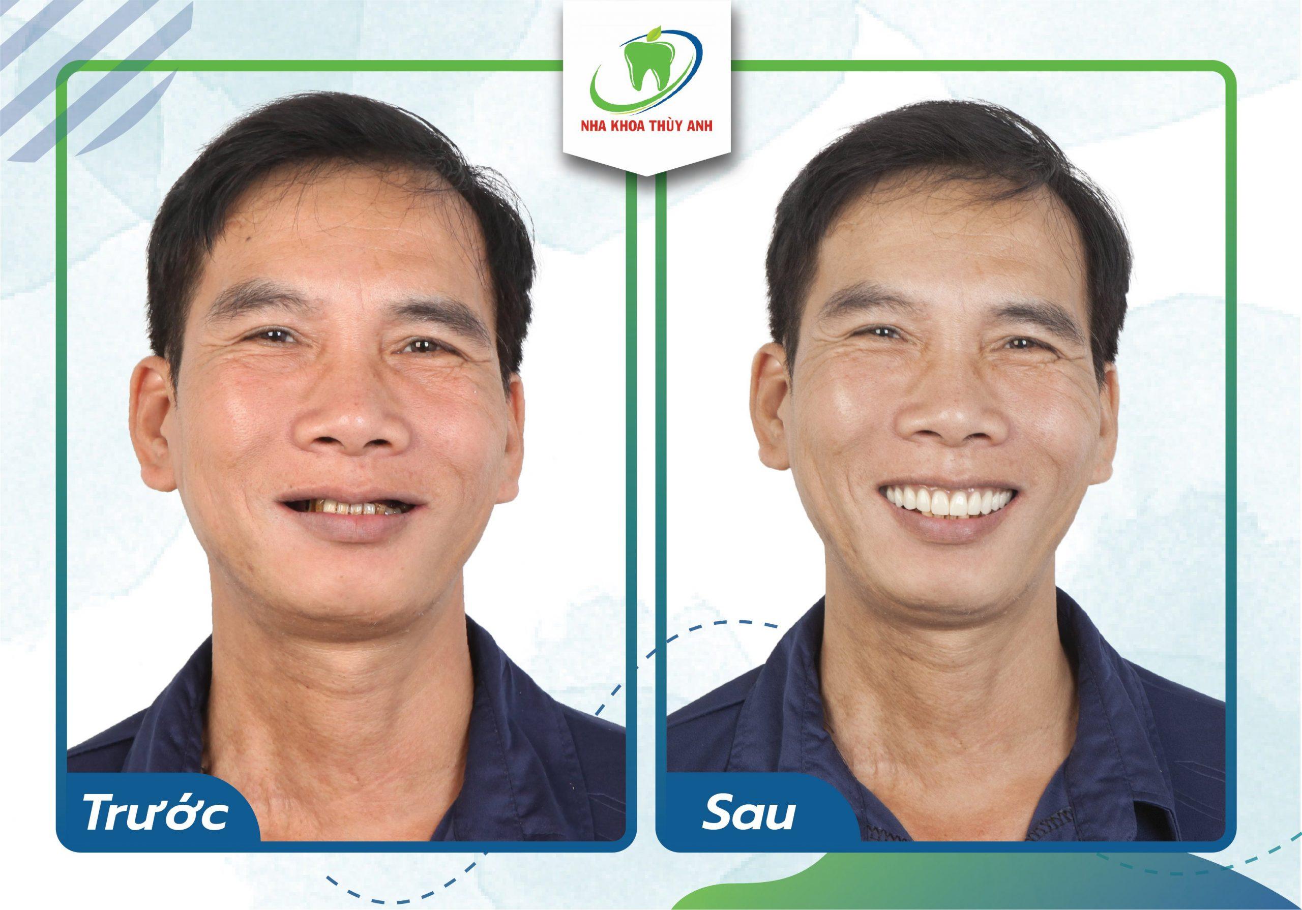 Cải thiện thẩm mỹ – đảm bảo ăn nhai trong trường hợp mất răng toàn hàm cho khách hàng với bác sĩ Lê Sơn Tùng