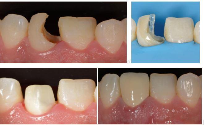 Cắm chốt bảo tồn răng thật: Điều trị với chi phí thấp mà hiệu quả cao