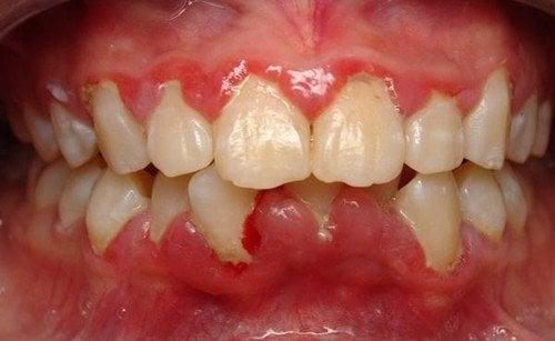 Đánh răng bị chảy máu chân răng: Phải làm sao? Nha khoa Thùy Anh