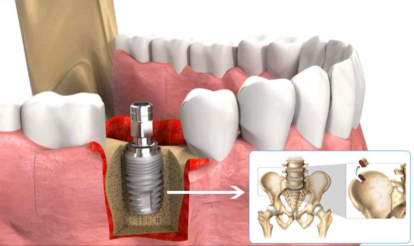 Thông tin về phương pháp ghép xương nhân tạo và tự thân trong trồng răng implant