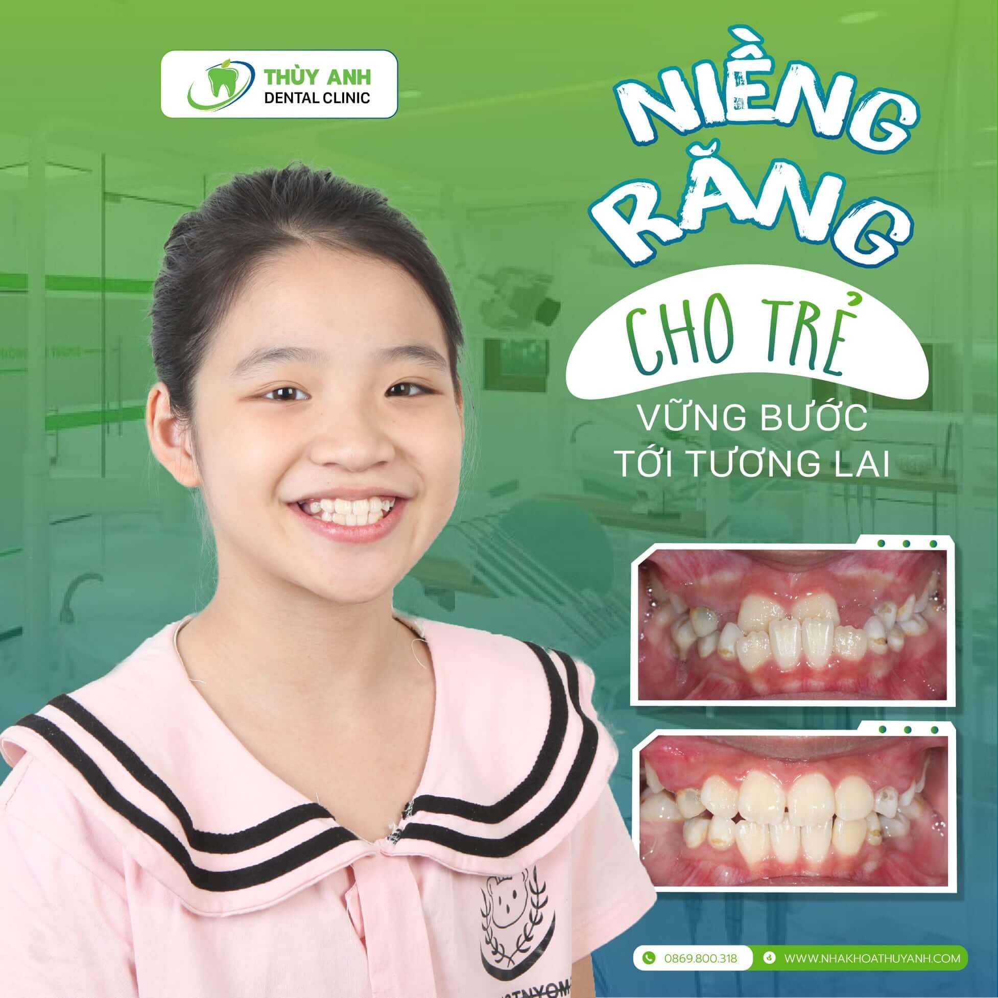 Invisalign First: Xu hướng niềng răng hiệu quả – thẩm mỹ – an toàn cho trẻ nhỏ