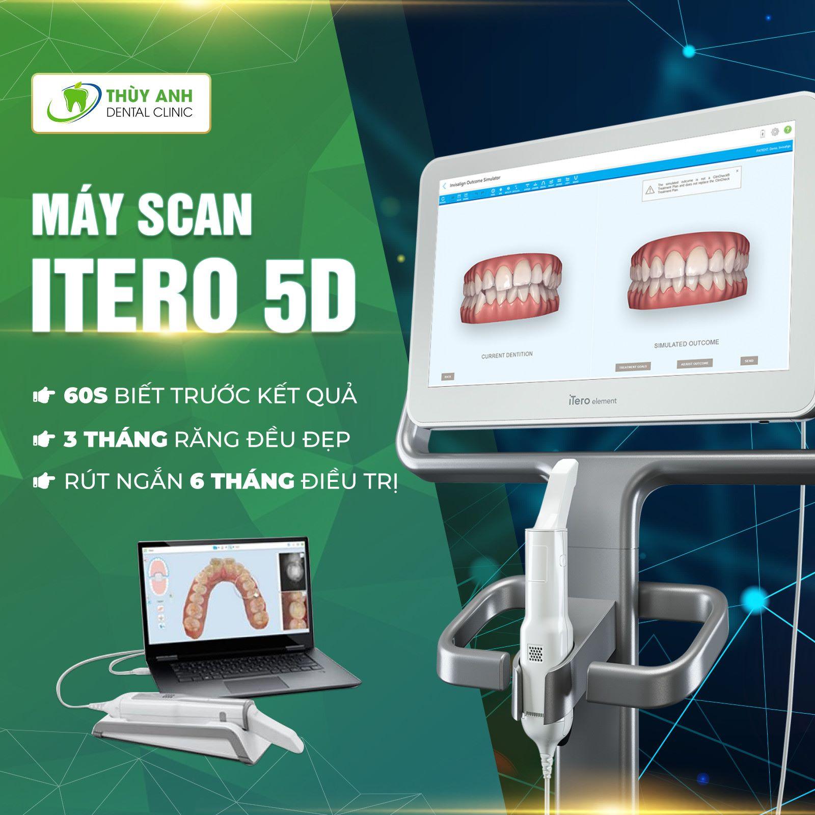Biết trước kết quả niềng răng với máy itero 5D tại Thùy Anh hoàn toàn miễn phí