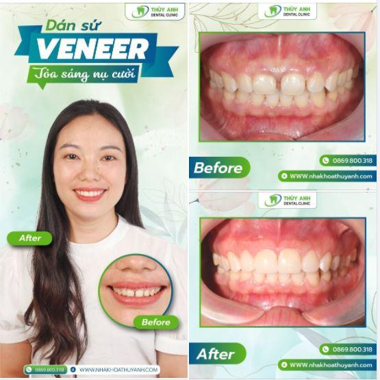 Trong mắt nhà chuyên môn răng sứ thế nào là đẹp? Nha khoa Thùy Anh