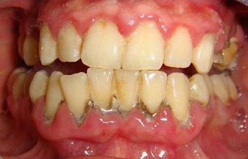 Cách phòng ngừa và hướng điều trị bệnh viêm quanh răng? Nha khoa Thùy Anh