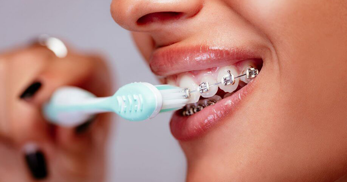 Hướng dẫn cách đánh răng cho người niềng răng – nha khoa Thùy Anh