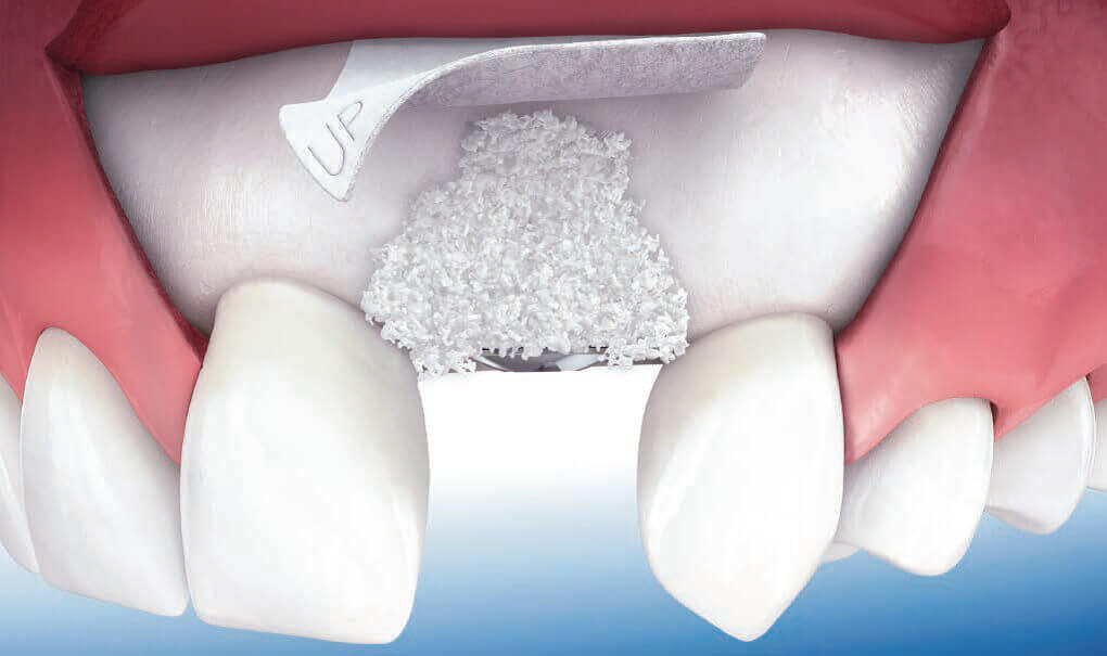 Cấy ghép màng xương trong trồng răng Implant. Những trường hợp nào cần cấy ghép màng xương?