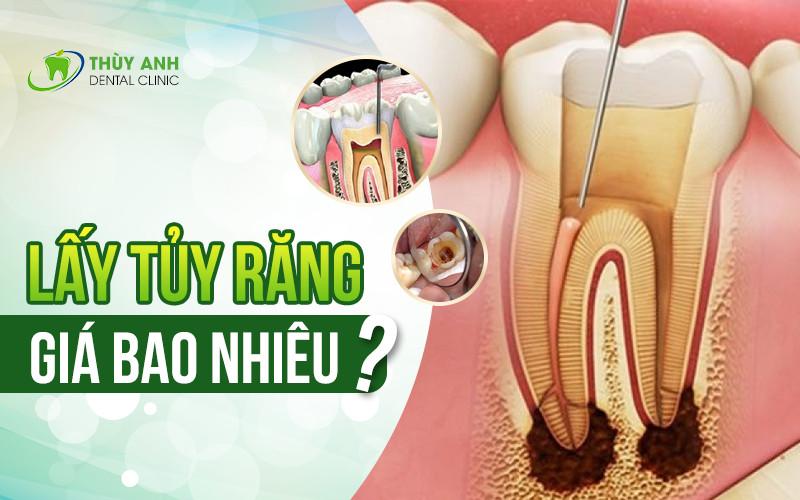 Lấy tủy răng giá bao nhiêu? Bảng giá lấy tủy răng tốt nhất năm