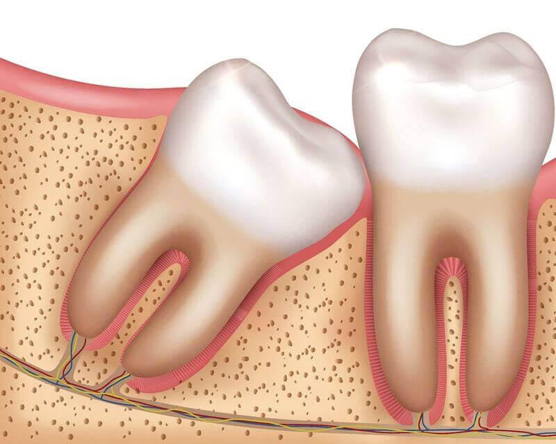 Nhổ răng khôn có làm giảm trí nhớ không? Nha khoa Thùy Anh