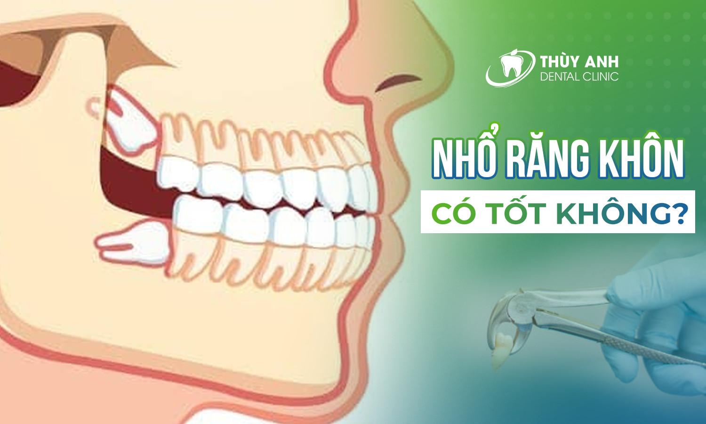 Nhổ răng khôn có tốt không? Khi nào nên nhổ và nhổ vào thời điểm nào?