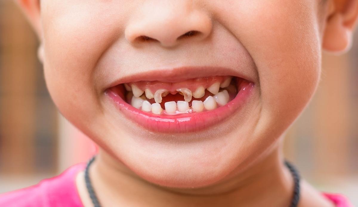 Răng sữa bị sâu: Nguyên nhân do đâu? Cách điều trị và phòng tránh như thế nào?