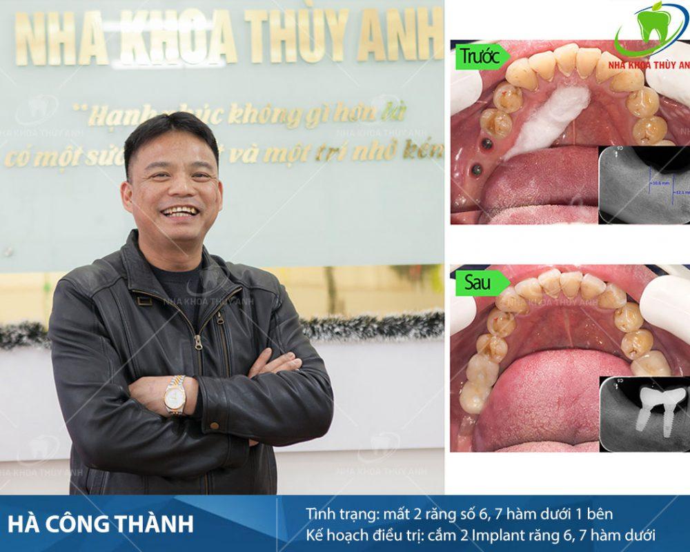 hinh-anh-thuc-te-trang-rang-implant-4