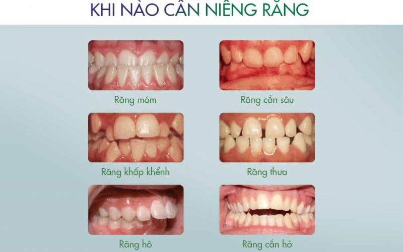 nieng-rang-thai-nguyen-1