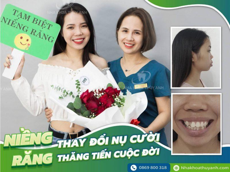 rut-ngan-thoi-gian-nieng-rang 2 (1)