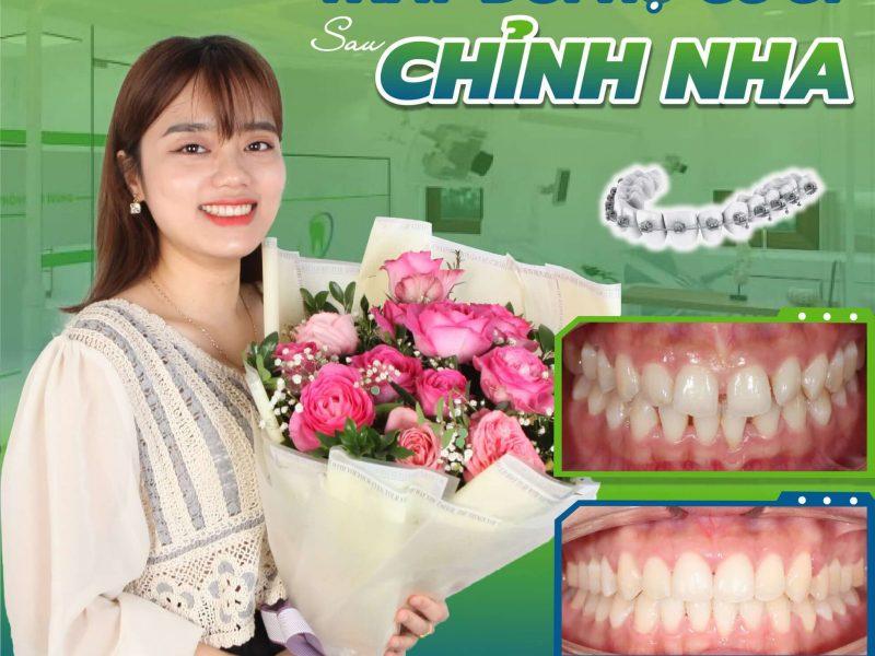 rut-ngan-thoi-gian-nieng-rang -3 (1)