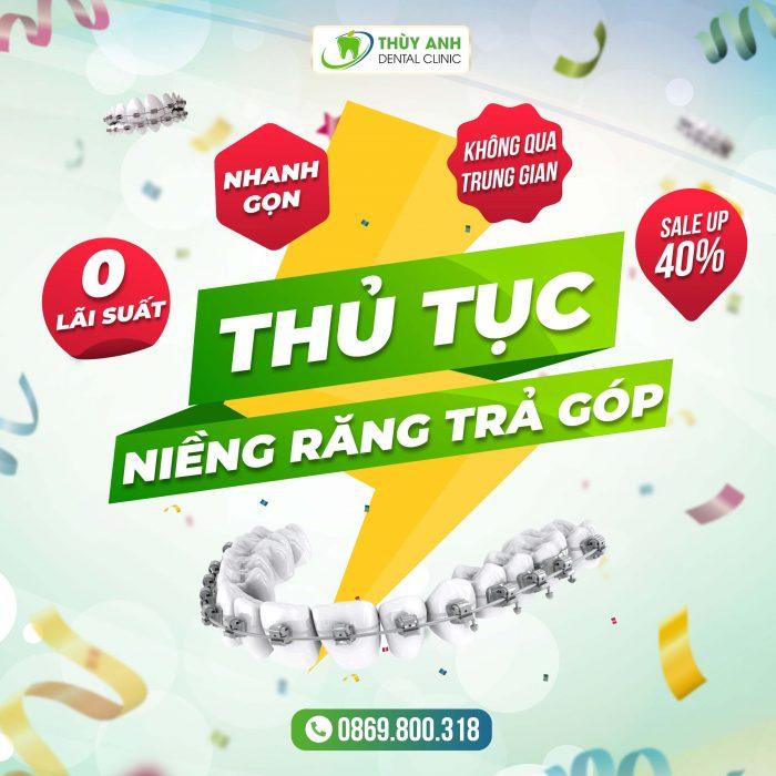 thu-tuc-nieng-rang-tra-gop (1)